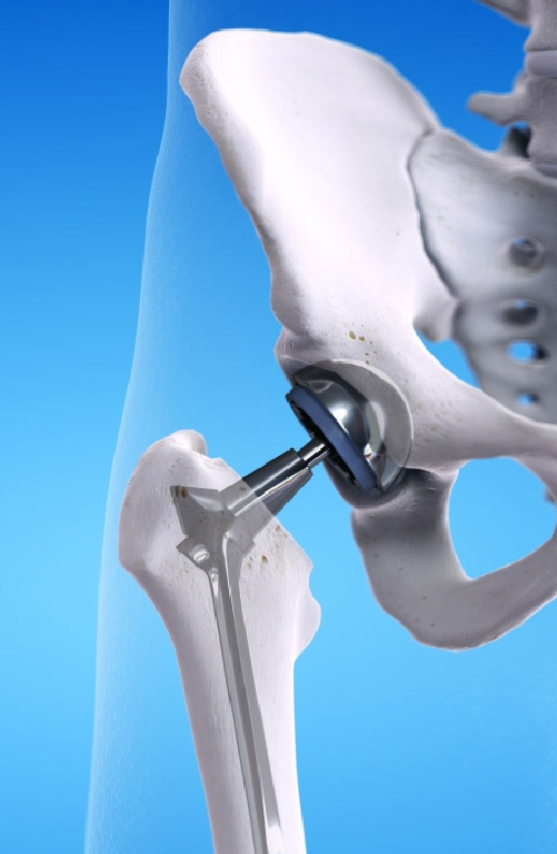Sub-Speciality_Joint_Replacement_Mobile_jpg.jpg