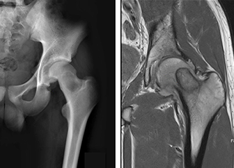 Comprehensive Pediatric Bone Tumor Management