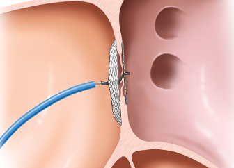Device Closure of Congenital Defects