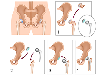 Paediatric Hip Pathologies Managed with Safe Surgical Dislocation